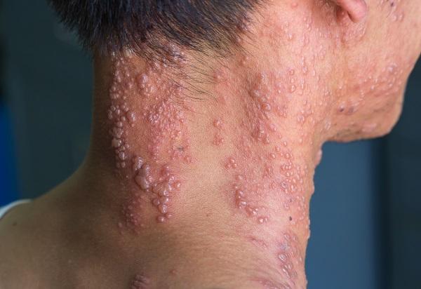 Fieberbläschen des Herpes Zoster am Hals