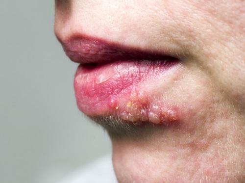 Fieses Lippenherpes mit Fieberbläschen