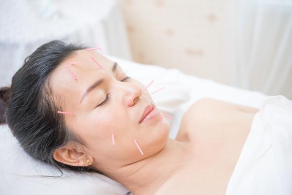 Akupunkturpunkte im Gesicht bei Herpes