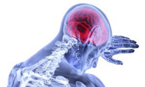 Schmerzen bei Herpes Zoster durch Hypnose lösen